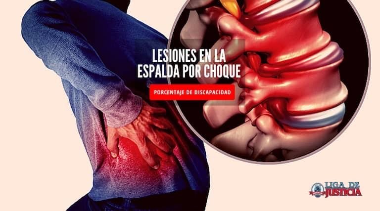 Abogado de lesiones en la espalda por choque. Descubre cual es el porcentaje de incapacidad por hernia de disco.