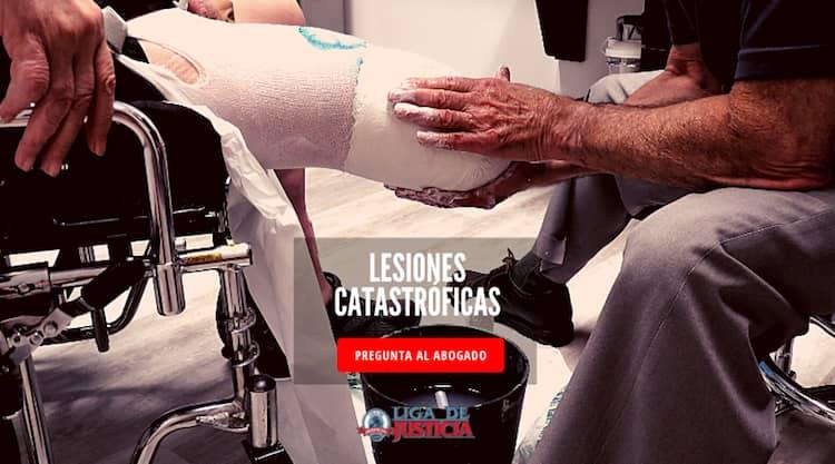 Pregúntale a nuestros abogados de lesiones con amputación o desmembramiento qué hacer en tu caso.